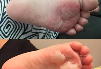 Toddler suffers horrific second-degree burns from hot playground mat