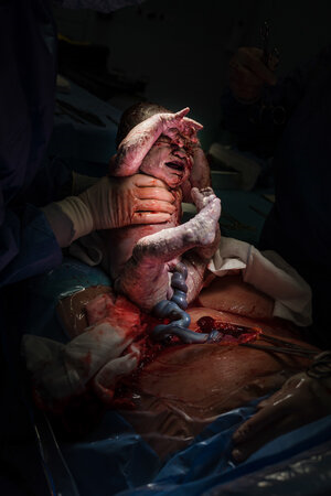Best birth photography